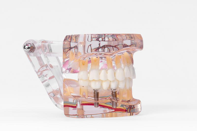Teeth Dental Implantaat royalty-vrije stock foto