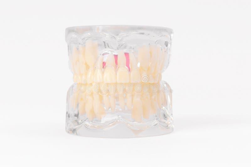 Teeth Dental Implantaat stock fotografie