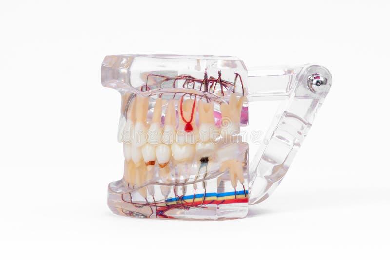 Teeth Dental Implantaat royalty-vrije stock afbeeldingen