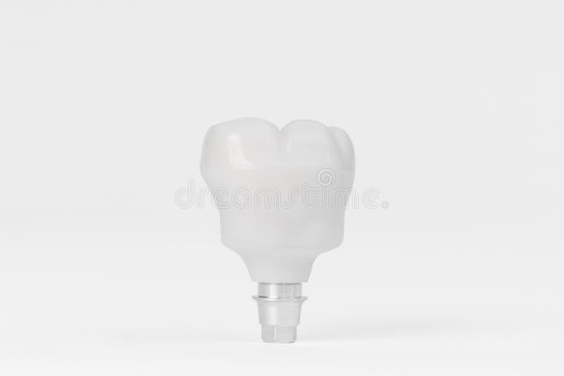 Teeth Dental Implantaat stock foto