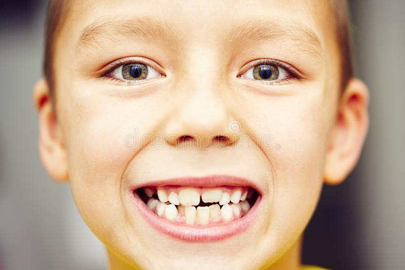 Teeth. First and second teeth of the little boy stock photo