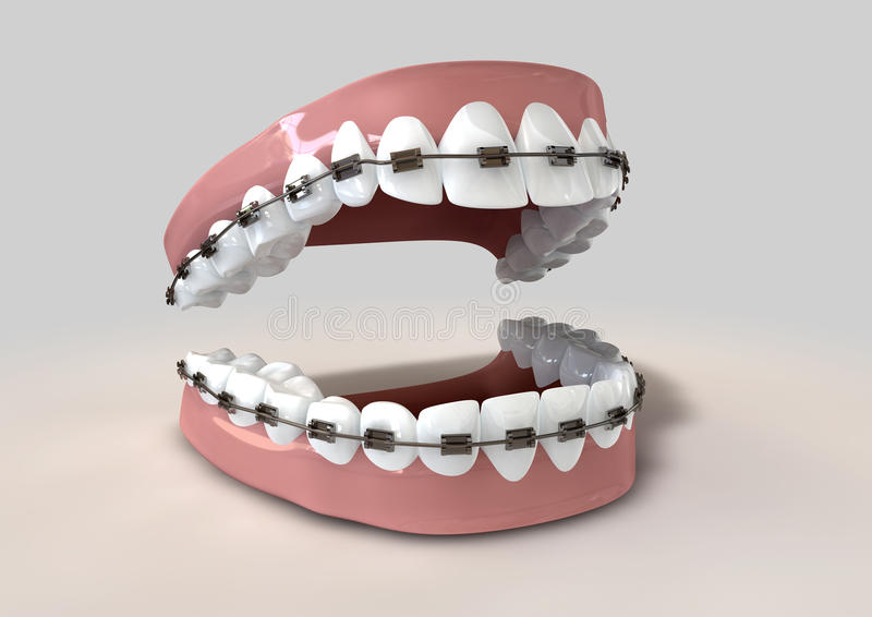 Teeth Fitted With Braces Stock Image