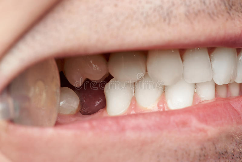 Teeth with gap of missing tooth. Close-up. Doctor man checking teeth royalty free stock photography