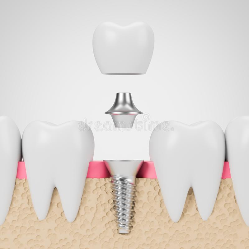 Teeth with implant screw, white background vector illustration
