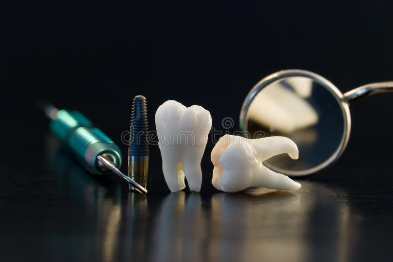 Teeth and implants stock photo