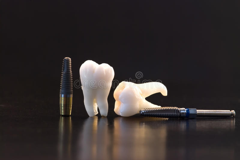 Teeth and implants royalty free stock photo
