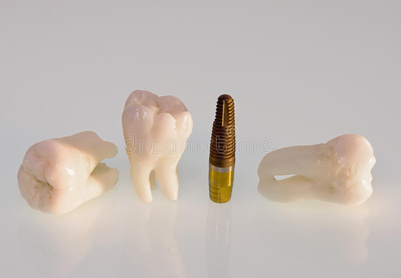 Teeth and implants stock images