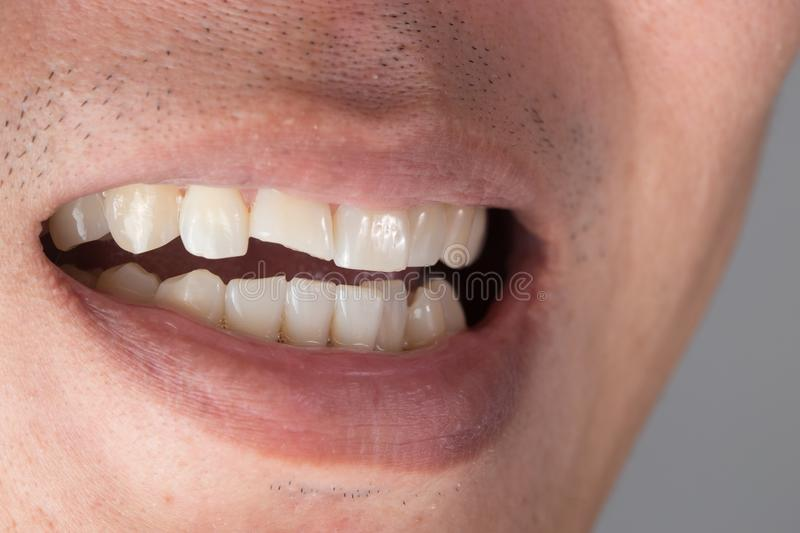 Teeth Injuries or Teeth Breaking in Male. Trauma and Nerve Damage. Of injured tooth, Permanent Teeth Injury stock photography