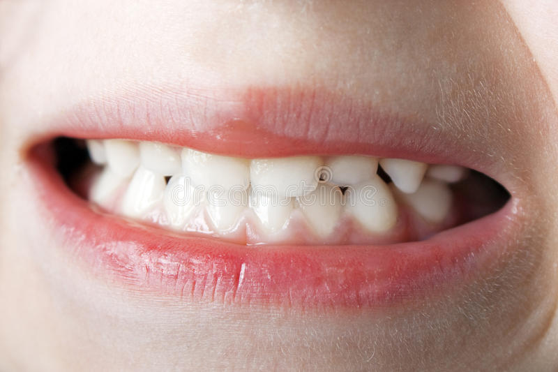 Teeth macro stock photos
