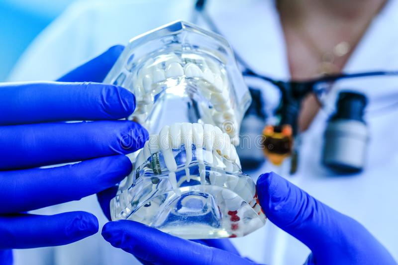 Teeth model held by real dentist with blue gloves. Dentist showing a jaw model. Doctor hands holding teeth model in dental clinic. Dentistry, dental care stock images