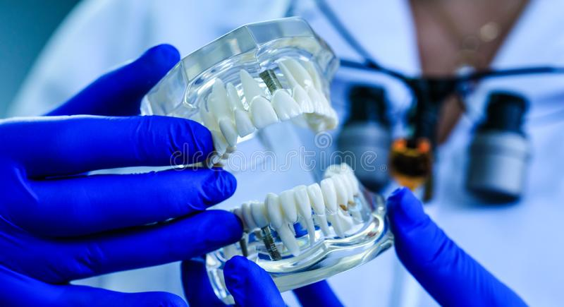 Teeth model holding by real doctor in dentistry clinic. Tooth restoration. Oral care and orthodontic treatment on background of cl stock photography