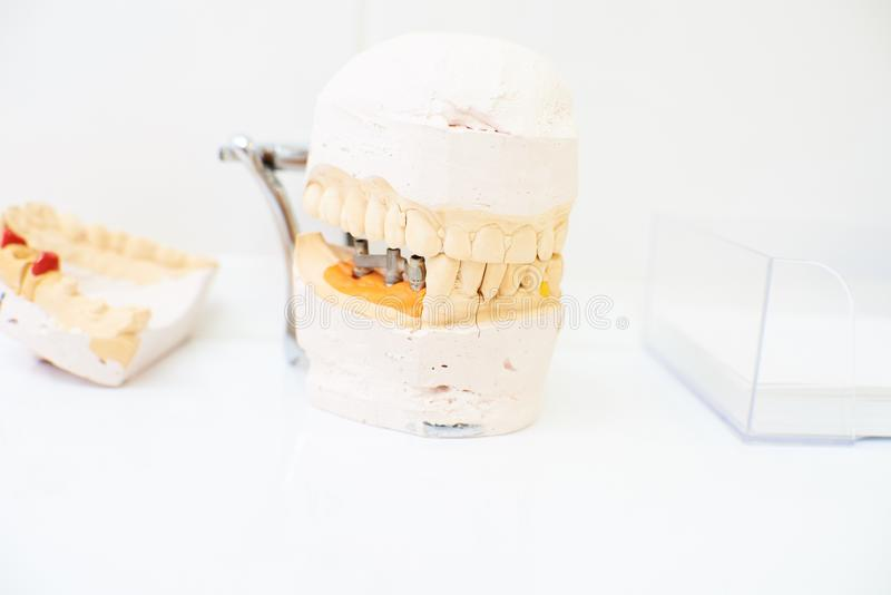 Dentistry, dental treatment. Teeth model on a white table, dentistry, dental treatment royalty free stock photo