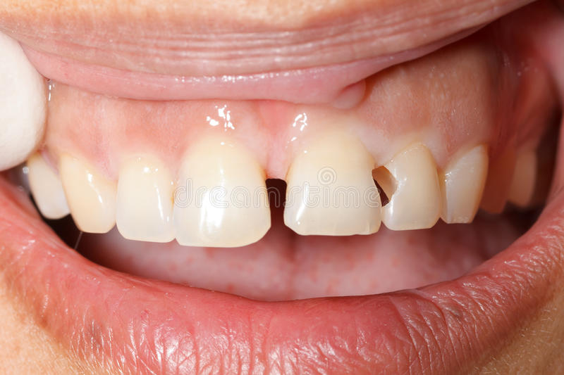 Cleaned dental cavity stock image