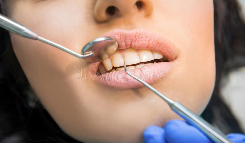 Teeth, probe and mouth mirror. Examination at dentist, close up. Perfection starts from health stock images