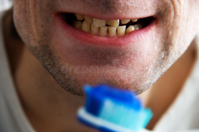 Teeth and toothbrush. Yellow teeth with dirty lips, detail the man's mouth after eating royalty free stock photo