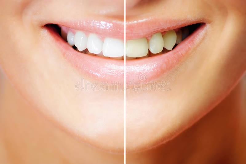 Download Teeth whitening stock photo. Image of happy, smiling - 19837570