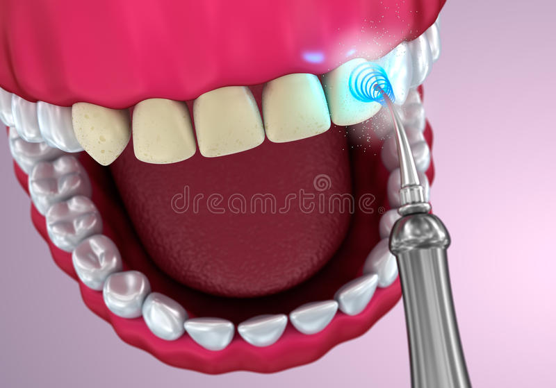 Teeth whitening , Medically accurate illustration. Teeth whitening , Medically accurate 3D illustration stock illustration