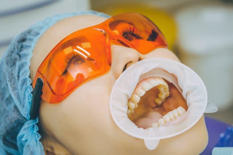 Teeth whitening procedure stock photo