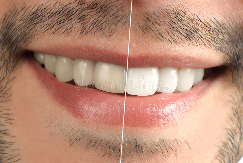 Teeth. Wide sincere smile royalty free stock photos