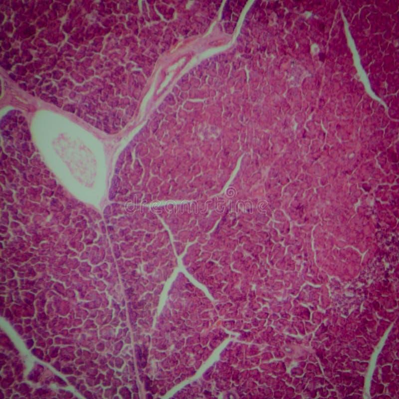Tejido del páncreas imagen de archivo. Imagen de anatomía - 24846293