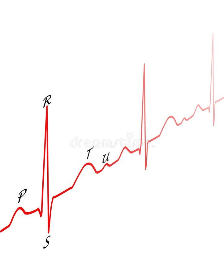 Tekening ECG stock illustratie