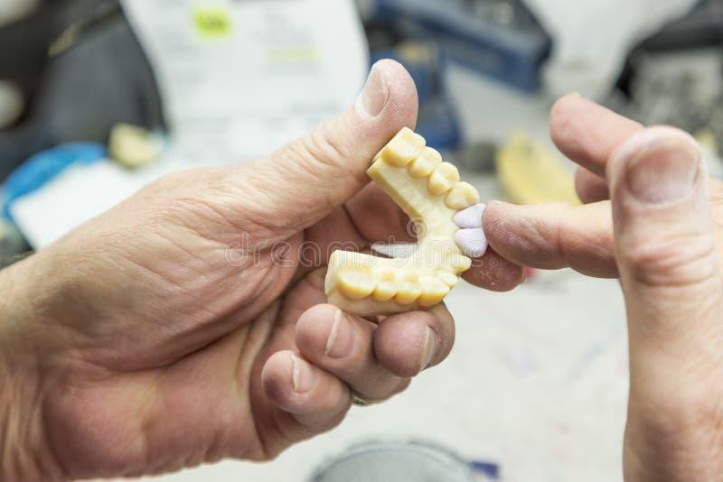 Teknikeren Working On 3D skrivev ut formen för tand- implantat arkivfoto