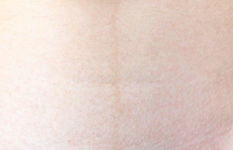 Tekstura ludzka skóra zdjęcie stock