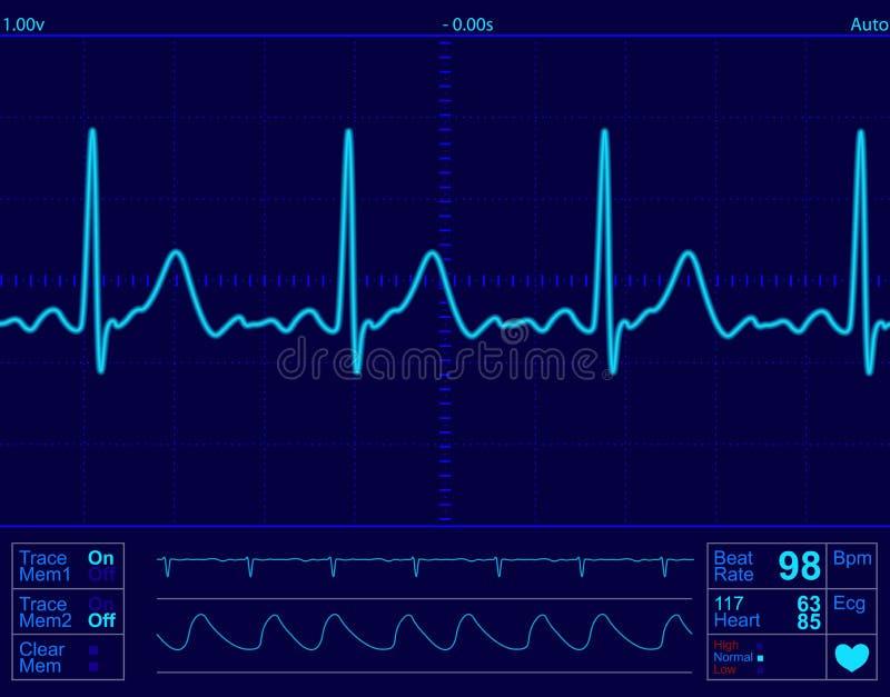 Tela de monitor do coração ilustração do vetor