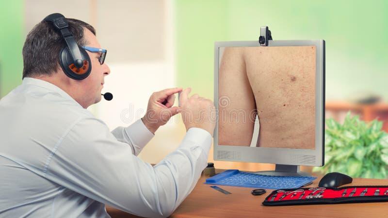 Telemedicine dermatologa przyglądająca łojowa cysta na monitorze zdjęcie royalty free