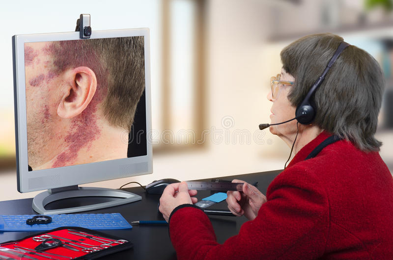 Telemedicine dermatologist looking at big birthmark. Telemedicine female dermatologist in headset observes at birthmark on computer monitor attentively. Virtual stock photography