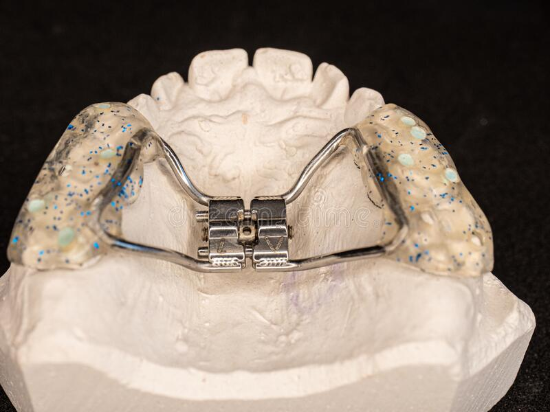 Appliance to make young upper jaw wider. Temporary used orthodontic appliance to make young upper jaw wider. Palatal expander for the maxilla stock images