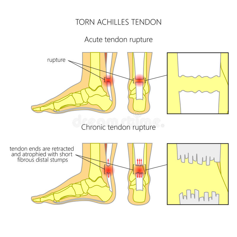 Tendão de Achilles rasgado ilustração do vetor