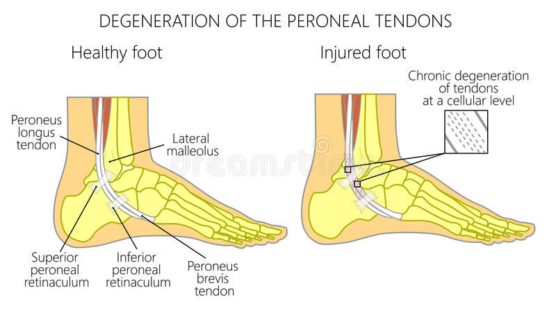 Tendão Peroneal Injuries_Degeneration do longus do peroneus e ilustração stock