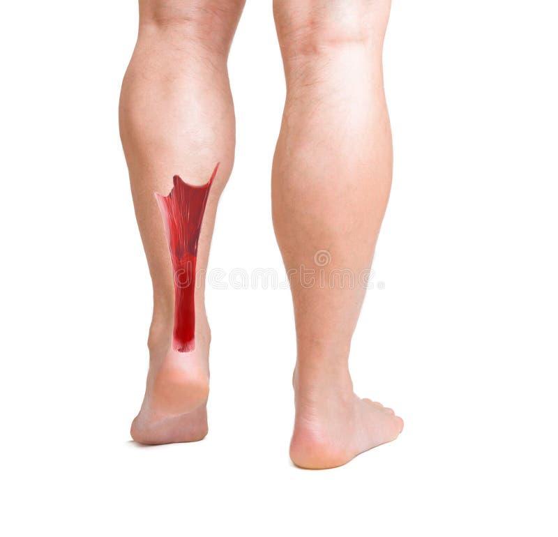 Tendón de Aquiles con músculos más bajos de la pierna imagen de archivo