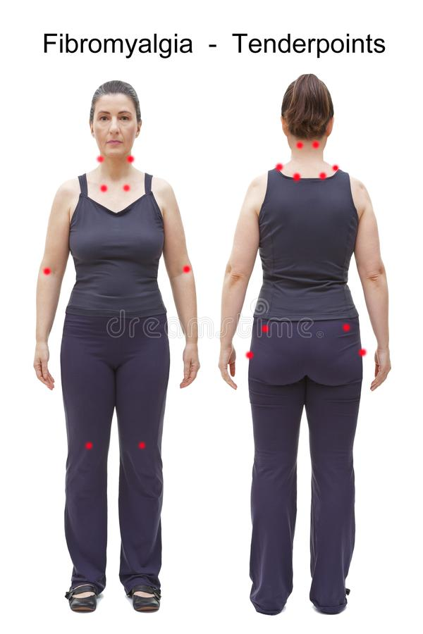Tender points fibromyalgia body woman stock photography