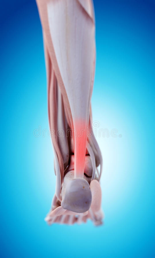Tendine di Achille doloroso illustrazione vettoriale