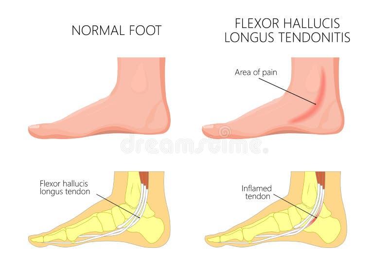Tendonitis central dos hallucis do injury_Flexor do tornozelo ilustração do vetor
