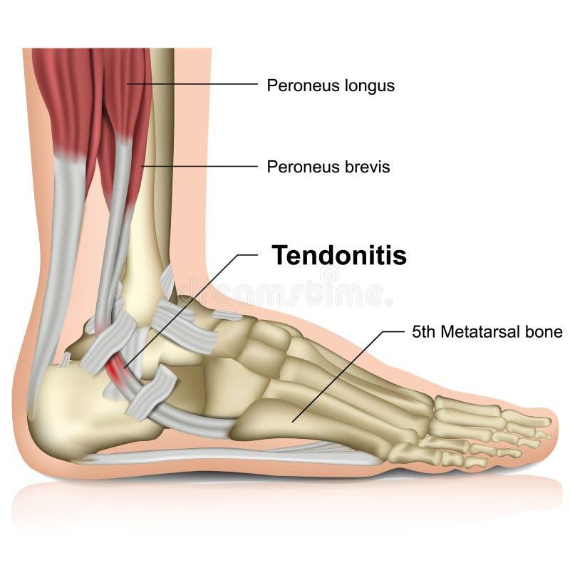 Tendonitis péronéal, illustration médicale de l'articulation de la cheville 3d illustration libre de droits