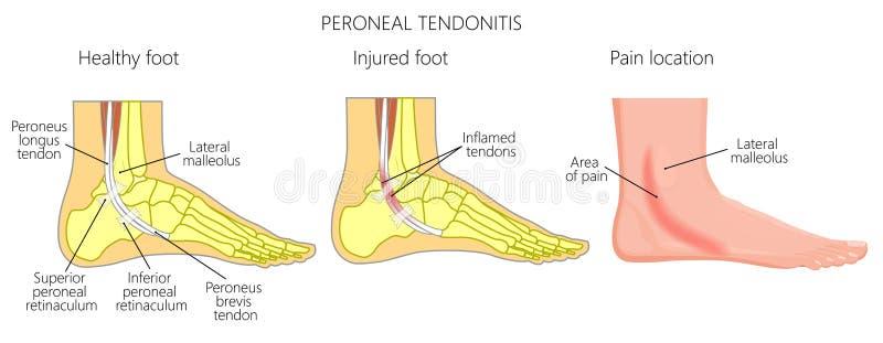 Tendonitis Peroneo De Injuries_Peroneal Del Tendón Ilustración del ...