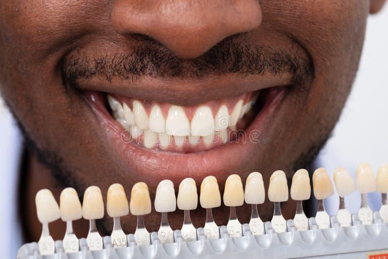 Tenencia del hombre fijada de implantes con los varios tonos del tono foto de archivo libre de regalías