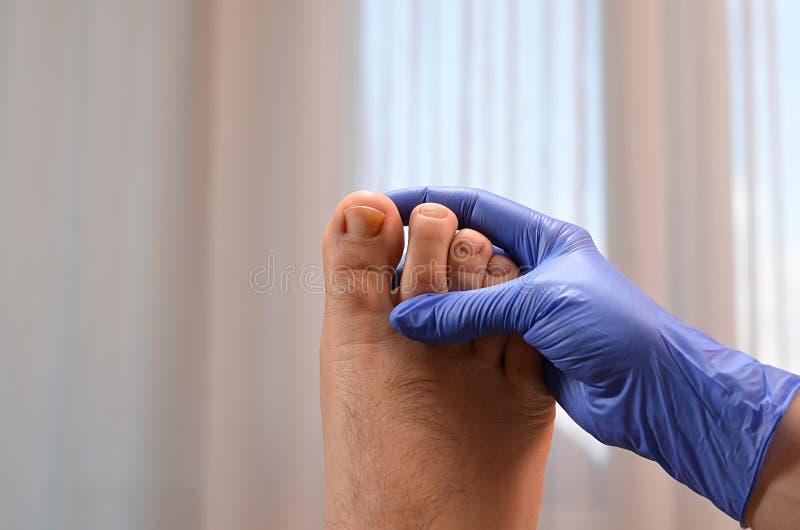 Tenir un orteil avec l'infection fongique photos libres de droits