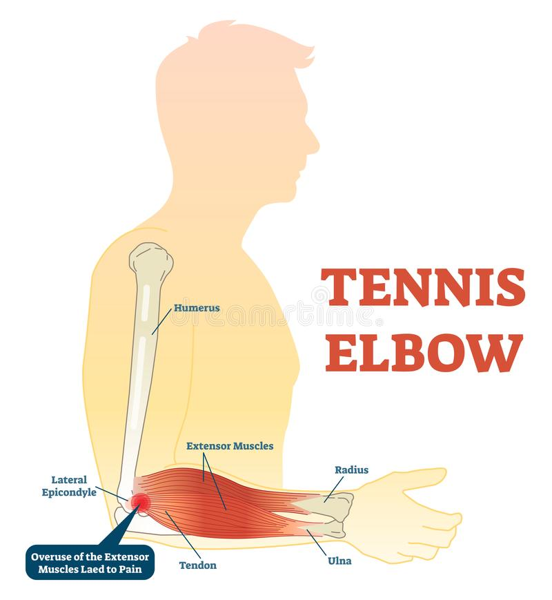 Tennis elbow medical fitness anatomy vector illustration diagram with arm bones, joint and muscles. Overuse of extensor muscles leading to pain royalty free illustration