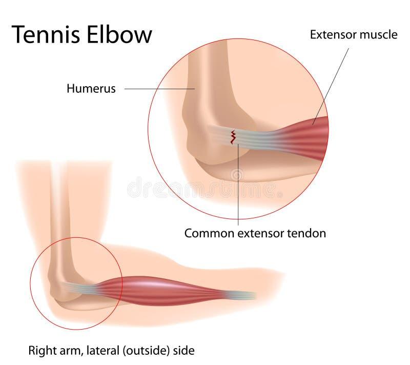 Tenniselleboog stock illustratie