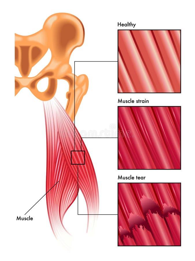 Tensão e rasgo do músculo ilustração royalty free