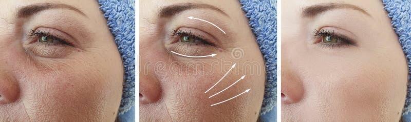 Tensione di sollevamento cascante di ringiovanimento di trattamento dei caucasianwrinkles della donna prima e dopo la correzione fotografia stock