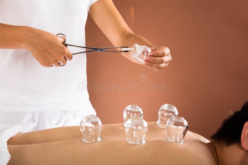 Terapeuta Daje Cupping terapii mężczyzna zdjęcie stock