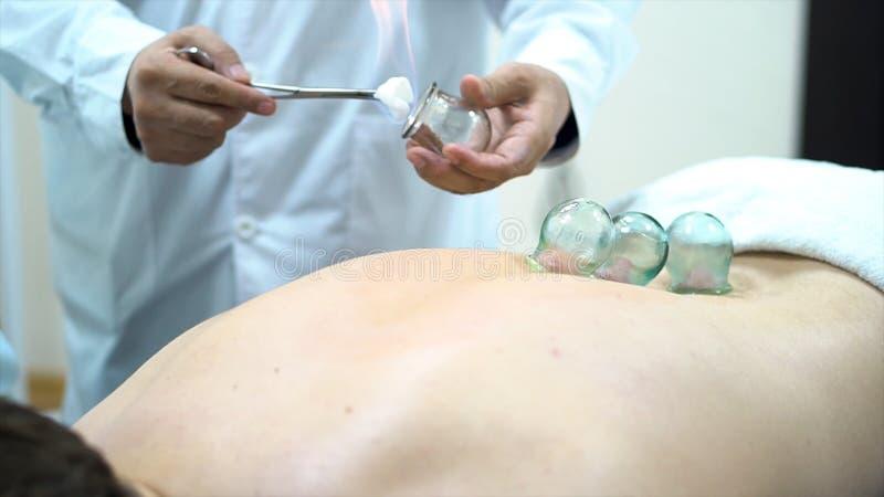 Terapeuta de la acupuntura que coloca una taza en la parte de atrás de un paciente masculino, medicina alternativa china antigua  fotos de archivo