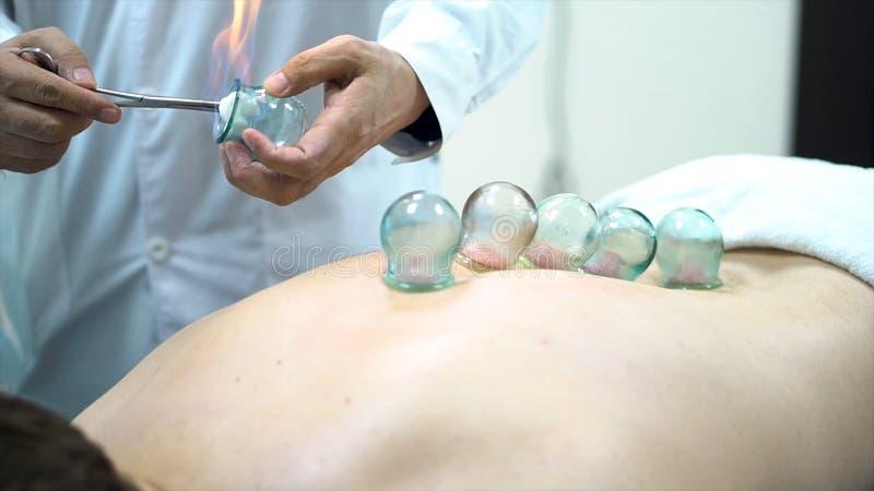 Terapeuta de la acupuntura que coloca una taza en la parte de atrás de un paciente masculino, medicina alternativa china antigua  imagen de archivo libre de regalías