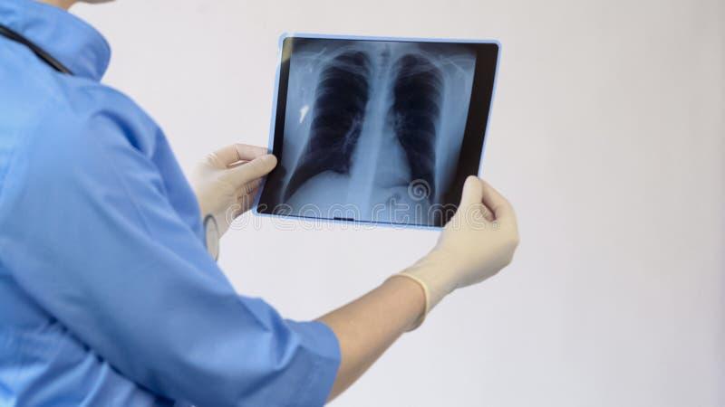 Terapeuta fêmea que analisa o raio X dos pulmões, resultado paciente do exame, diagnóstico fotografia de stock