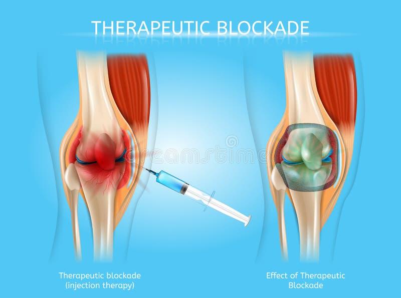 Terapeutisk blockering med injektionterapivektorn royaltyfri illustrationer